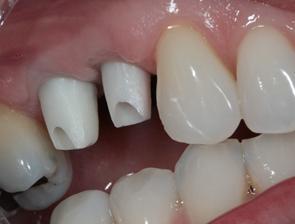 implants-esthetic-3