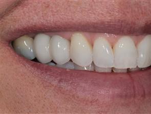 dental implant aesthetic