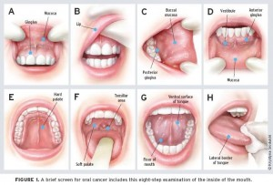Oral Cancer Screening Checkpoints