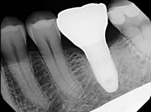 Single implant - xray after