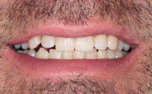 Vancouver Cosmetic Dentistry Van Dental