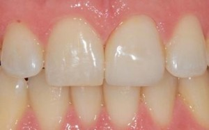 Vancouver Cosmetic Dentistry After Crown