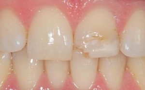 Vancouver Cosmetic Dentistry Before Crown