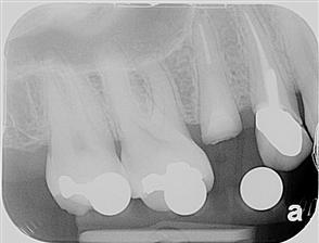 West Broadway Dental Implants Esthetic