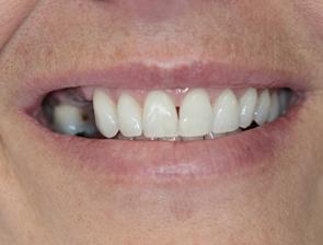 West Broadway Dental Implants Patient