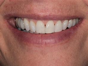Patient After Dental Implant Procedure