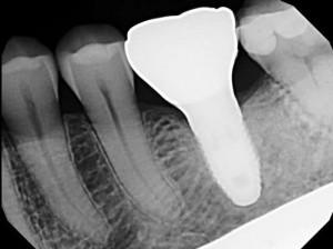 West Broadway Dental Implants